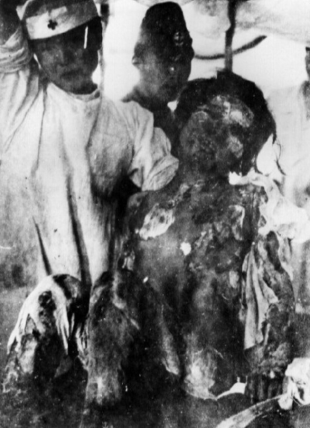 http://thule-italia.com/wordpress/wp-content/gallery/g-1/japanese-burn-victims-2-from-the-atomic-bomb.jpg